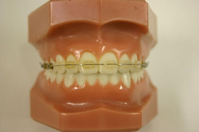 Remember Jaws from James Bond? Orthodontics Have Moved On Since Then